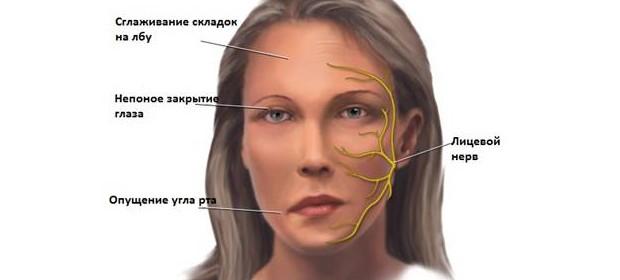 Как в домашних условиях лечить лицевой нерв